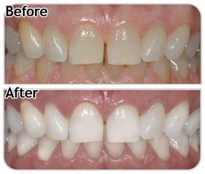 Amazon.com: Blanqueador De Dientes Smile - Kit De Gel Blanqueaor - Blanqueamiento Dental En Casa - Tratamiento Profesional Para Blanquear Los Dientes - Luce ...