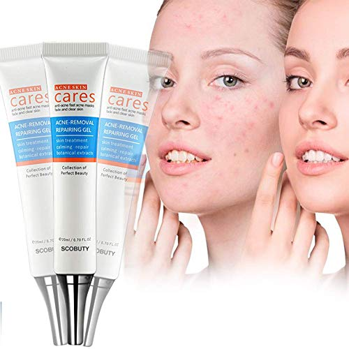 Acne Cleaning Cream,Acne Treatment Gel,Acne Removal Cream,Acne Gel Essence Skin Repair Face Cream,Natural Treatment Gel for Facial Blackhead Acne,Removes Spots Calms Inflammation