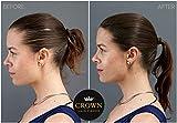 CROWN HAIR FIBERS for Thinning Hair