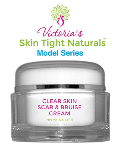 Victoria's Best Clear Skin Scar and Bruise Cream Model Se...