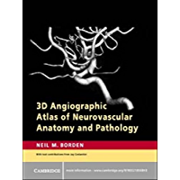 3D Angiographic Atlas of Neurovascular Anatomy and Pathology