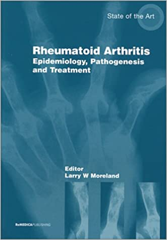 Management Rheumatoid Arthriti: Epidemiology, Pathogenesis and Treatment (State of the Art)