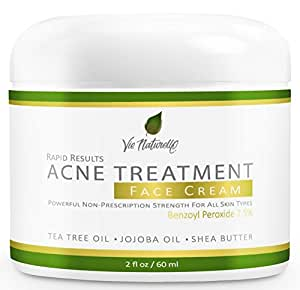 Acne Treatment Cream - Topical Anti Acne Medication - Witch Hazel, Tea Tree Leaf, Jojoba Oil, Almond Oil, Shea Butter With Benzoyl Peroxide 7.5% - 2 oz/60ml
