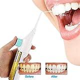 Cleansing Water Jet - FOONEE Cordless Water Flosser, Portable Dental Cleaner/Dental Water Washer/Oral Flush/Deep Cleansing Teeth for Bracelet and Teeth Whitening