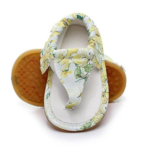 Malloom® Kinder Baby Casual Quasten Sandalen Sommer Print Sohle Krippe Hohl Schuhe Sneaker Farbe: Rosa, Grün, Gelb, Weiß Größe: 11,12,13,14,15 Gelb