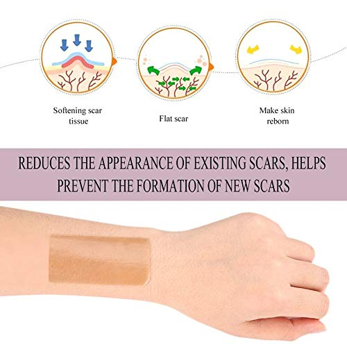 Silicone Scar Gel Paste Medical Burn Scar Sheet Skin Repair Scar Therapy Patch by Lovelysunshiny (Image #5)