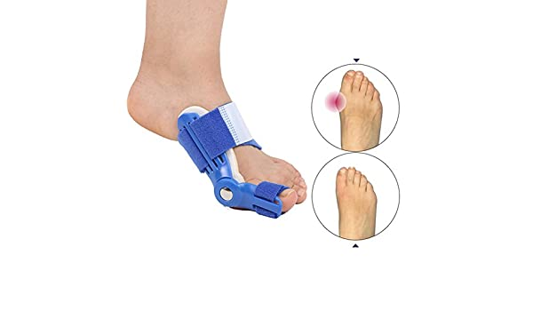 Amazon.com: Orthotics Big Toe Corrector Hallux Valgus Foot Pain Relief Feet Guard Care Bone Corrective Bunion Night Day Splint Straightener: Health ...