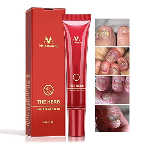 Nail Repair Cream,Herb Nail Repair Cream Protector, Nail Care Treatment of Anti-Fungal Cream, Effective Against Nail Fungus, Restores the Healthy Appearance of Nails