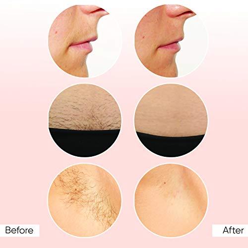 Sensica Sensilight Mini Permanent Hair Removal Device for Men & Women , Advanced RPL Technology System Painless Kit, Hairless Body & Face