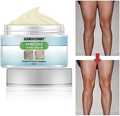 varicose veins cream reviews