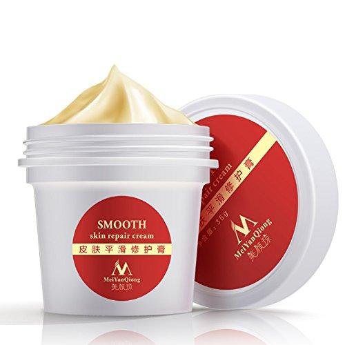 Anti Aging Wrinkle Cream,Silvercell Postpartum Care Maternity Repair Cream Remove Stretchtretch Marks & Scars Defense Cream