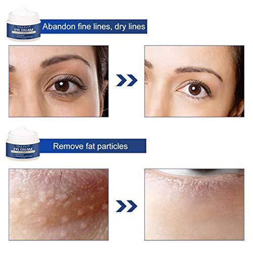 41KEc1gMe8L - Under Eye Cream, Eye Repair Cream, Anti-Aging Eye Cream, Eye Cream for Dark Circles & Puffiness & Under Eye Bags, Nourishes Skin & Fights Wrinkles, Rapid Wrinkle Repair Eye Skin