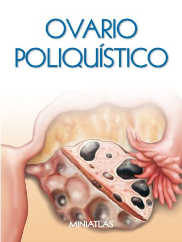 Amazon.com: Síndrome de Ovario Poliquístico (SOP) - Miniatlas ...