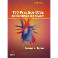 150 Practice ECGs: Interpretation and Review
