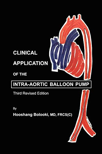 Clinical Application of Intra-Aortic Balloon Pump (Balloon Pump Aortic Intra)