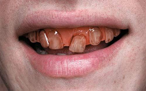 Rotten Ghoul Teeth