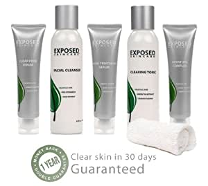 Expanded Acne Treatment Kit, 5 piece Kit for All Types of Acne by Exposed Skin Care