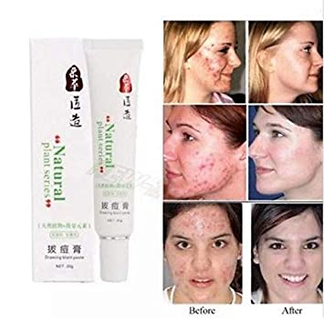 Amazon.com : Crema Para Quitar Borrar Cicatrices De Acne ...