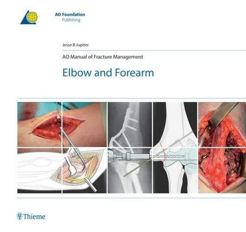 AO Manual of Fracture Management: Elbow & Forearm (AO-Publishing)