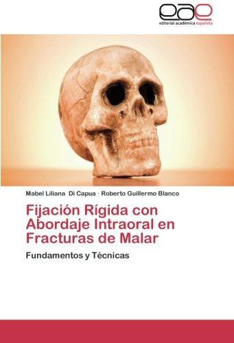 Fijacion Rigida con Abordaje Intraoral en Fracturas de Malar: Fundamentos y Tecnicas (Spanish Edition) [Mabel Liliana Di Capua - Roberto Guillermo Blanco] (Tapa Blanda)