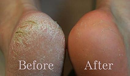 ... Baby Soft Feet,Dry Dead Skin Natural Treatment, Repair Rough Heels, Callus Remover, Soak Socks Booties, Get Gentle Feet, Original (2 Pairs): Beauty
