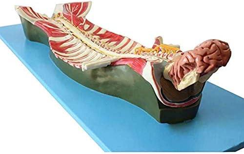 Model van de wervelkolomzenuw in het wervelkanaal, dit model toont voornamelijk de interne anatomie van het wervelkanaal en de structuur van de wervelkolomzenuw-GPI Anatomicals