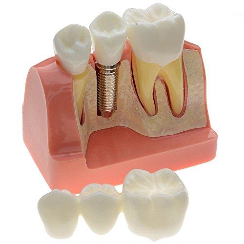 Zorvo 1 Piece Dental Dentist Flesh Pink Gums Standard Teeth Tooth Teach Model
