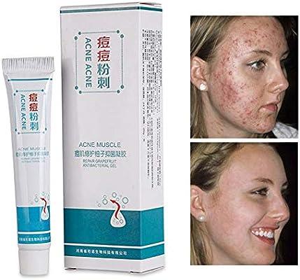 crema buena para el acne