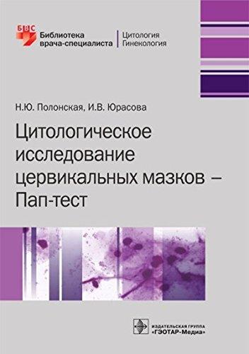 Read Online Tsitologicheskoe issledovanie tservikalnyh mazkov. Pap-test pdf
