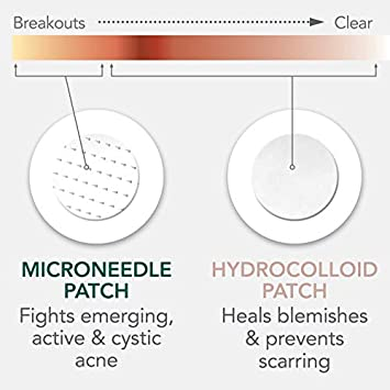 Rael Microneedle Acne Healing Patch – Pimple Acne Spot Tea Tree Treatment 3 Pack, 27 Patches
