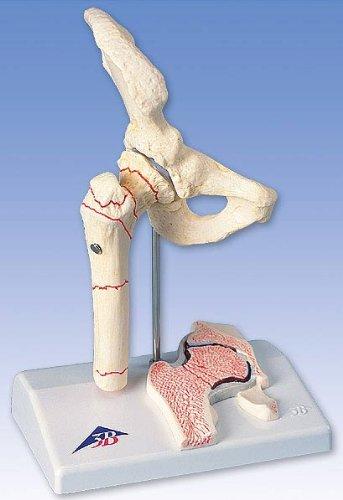 3B社 病理学模型 大腿骨骨折モデル (a88)   B003Z2SA7U