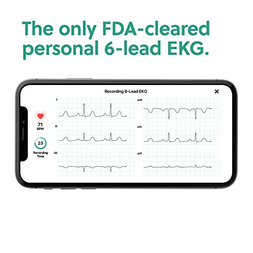 AliveCor KardiaMobile 6L   FDA-Cleared   Wireless 6-Lead EKG   Works with Smartphone   Detects AFib or Normal Heart Rhythm in 30 Seconds 41LPy8O AJL