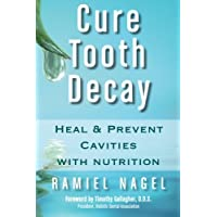 Cure Tooth Decay: Heal and Prevent Cavities with Nutrition, 2nd Edition
