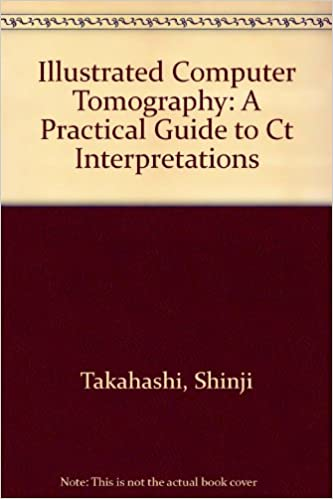 Free downloadable pdf books computer Illustrated Computer Tomography: A Practical Guide to Ct Interpretations 0387114327 in italiano iBook
