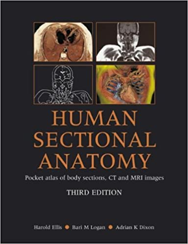 Human Sectional Anatomy: Pocket Atlas of Body Sections, CT and MRI Images, Third Edition