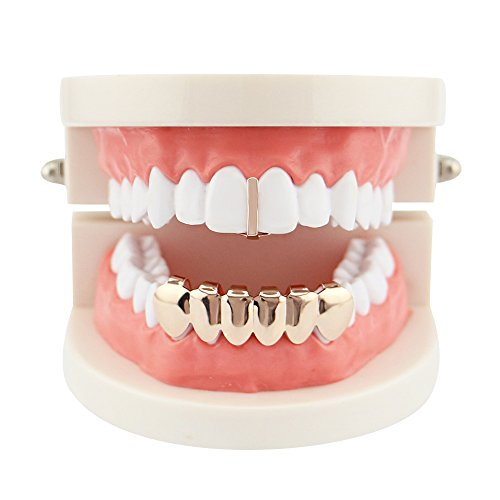 Lureen New 4 Color Bar Grills Teeth Top and 6 Bottom Teeth Set (Rose Gold)
