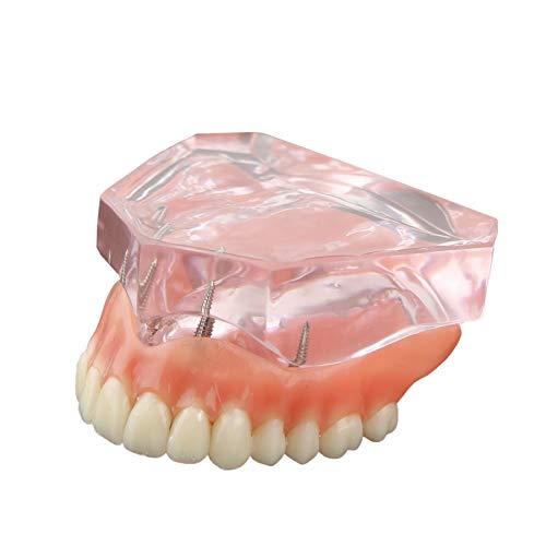 Dentalmall® 1 Pc Dental Model #6001 01 - Overdenture Superior with 4 Implants Demo Model