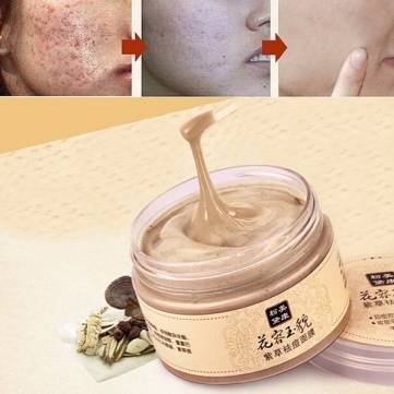 MEIKING Chinese Medicine Herbal Gromwell Mask Anti Acne Blackhead Remove Whitening Moisturizing by Completestore Femme Medicine