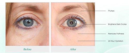 retinol for face
