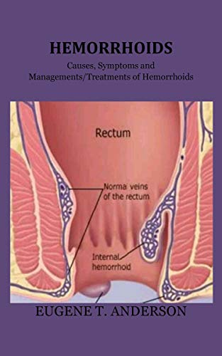 HEMORRHOIDS: Causes, Symptoms and Managements/Treatments of Hemorrhoids