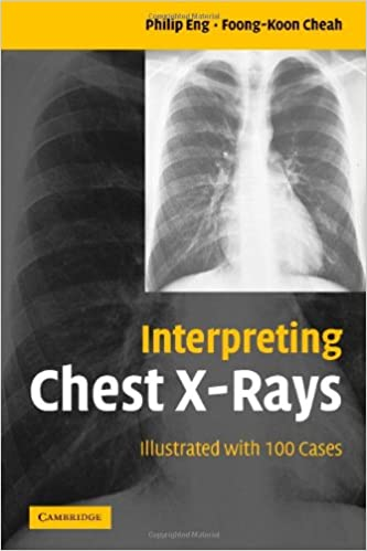 Interpreting Chest X-Rays: Illustrated with 100 Cases 1st Edition