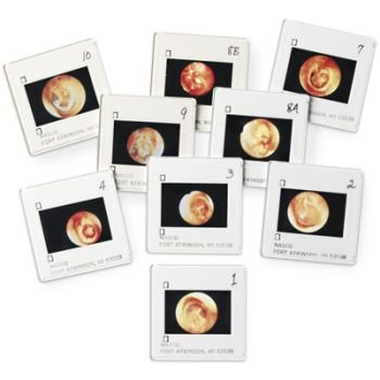 Diseases of the Ear Projection Slides, Diagnostic & Procedural Ear Trainer by Nasco