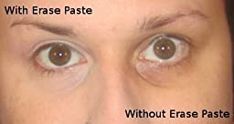 Amazon.com: Customer Reviews: Benefit Cosmetics erase paste ...
