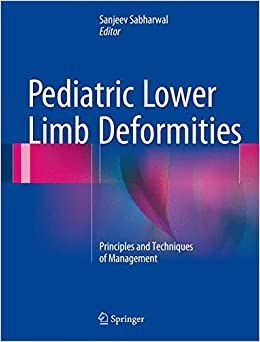 Book Pediatric Lower Limb Deformities: Principles and Techniques of Management