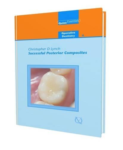 Successful Posterior Composites (Quintessentials Of Dental Practice)