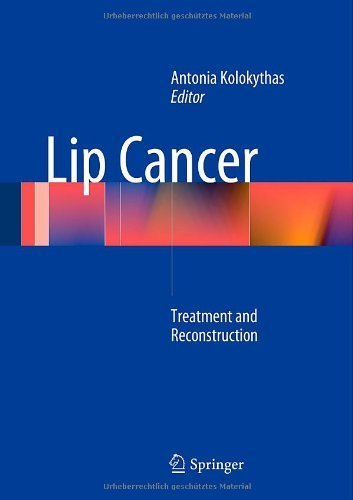 Treatment For Lip Cancer - 9