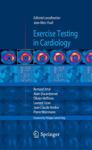 Exercise testing in cardiology