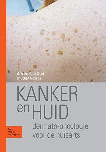 Kanker en huid: Dermato-oncologie voor de huisarts (Dutch Edition)