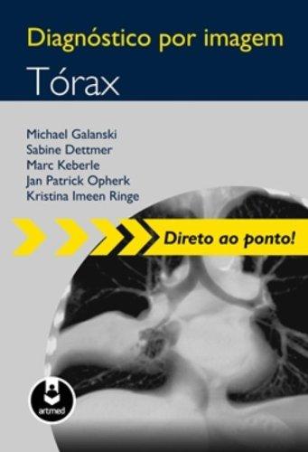Diagnóstico por Imagem. Tórax
