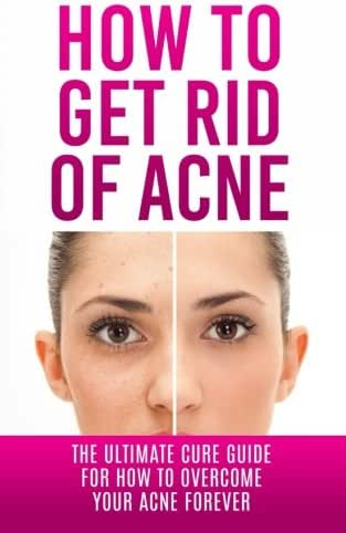How to Get Rid of Acne: The Ultimate Cure Guide for How to Overcome Your Acne Forever (Acne Cure, Acne Treatment, Acne No More, Acne Diet, How to Get Rid of Pimples, Back Acne)